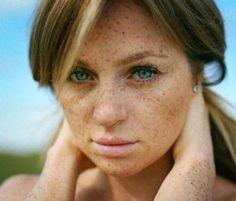Причины, лечение и средства при пигментации на лице