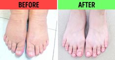 You can easily solve many health problems by doing a foot bath – ŞEKERKADIN Home Exercise Program, Workout Programs, Baking Soda Bath, Heart Conditions, Workout Dvds, Sore Muscles, Transformation Body, Going To The Gym, Health Problems