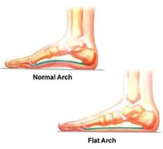 Overpronation Foot Problems: How to Fix Flat Feet - What is Overpronation?  What Causes