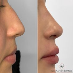 Nose Plastic Surgery, Nose Surgery, Upturned Nose, Nose Fillers, Pretty Nose, Nose Reshaping, Nose Jobs, Rhinoplasty Before And After, Face Proportions
