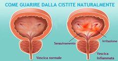 La cistite è una infiammazione della vescica urinaria. Si manifesta in genere con un bisogno continuo e doloroso di urinare, spesso accompagnato da bruciore