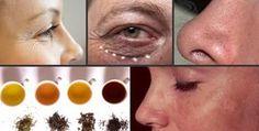 4 tè che proteggono la pelle   Rimedio Naturale