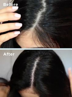 """Shoppers who had previously """"tried everything"""" to manage their dry scalp are so happy to have found this Briogeo Scalp Revival shampoo — details Shampoo For Dry Scalp, Hair Cleanse, Healthy Scalp, Brittle Hair, Hair Starting, Hair Scalp, Hair Regimen, Moisturize Hair, Prevent Hair Loss"""