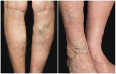Health Articles How To Get Rid Of Varicose And Spider Veins Naturally Written by: Drew Canole Ha… Varicose Vein Remedy, Varicose Veins Treatment, Radiofrequency Ablation, Health Articles, Health Tips, How To Get Rid, Natural Remedies, The Cure, 3 Things