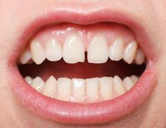 Scientists have pieced together sections of DNA from 12 individual cells to sequence the genome of a bacterium known to live in healthy human mouths. With this new data, the researchers were able to reinforce a theory that genes in a closely related bacterium could be culprits in its ability to cause severe gum disease.