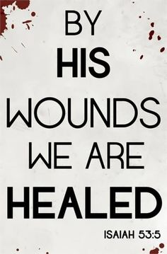 He has already paid the price for the healing.