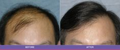 Hair Transplant change to your self, you can see different of before and after hair transplant that is why billion of people prefer to Hair Transplant.