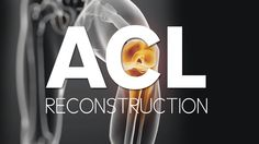 What are the steps in an acl surgery?