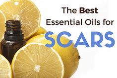 Why using essential oils for scars may be the latest method for natural scar treatment. The top essential oils for acne scars, surgical scars and healing scar tissue.