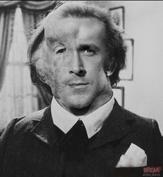 Elephant Man from The Elephant Man | 11 Hideous Movie Characters If Ryan Gosling Portrayed Them