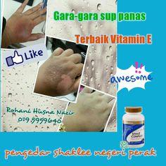 Hebatnya vitamin E shaklee ni...gara2 terkena sup panas blh hilang lps amalkan vitamin E tanpa tinggalkan kesan parut.