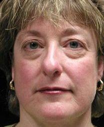 Facial Toning Exercises As An Eye Bag, Dark Circles, Below Eye Wrinkle Homespun Treatment