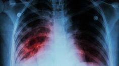 8 faits peu connus sur la tuberculose