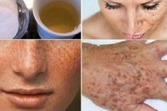 Let Your Wrinkles, Freckles & Dark Spots Disappear With This Amazing Homemade Lotion! Dark Spots Under Eyes, Dark Spots On Legs, Brown Spots On Face, Clear Skin Detox, Clear Skin Tips, Dry Skin On Face, Face Scrub Homemade, Freckles, Lotion