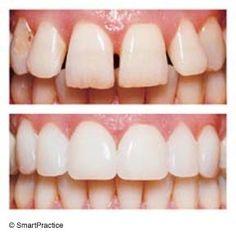 Cosmetic Teeth Treatment