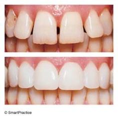 Cosmetic Teeth Treatment