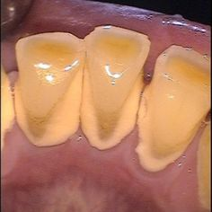 REMOVE TARTAR AND PLAQUE AT HOME http://www.lorecentral.org/2015/07/remove-tartar-or-plaque-at-home.html