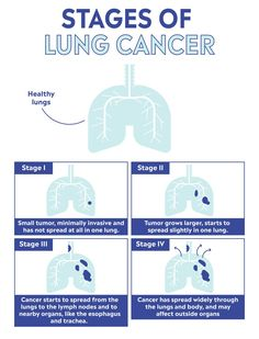 Lung cancer is the leading cause of cancer deaths in the United States. Learn about lung cancer symptoms, treatments, and risk factors, as well as how to prevent it from striking you. Lung Cancer Facts, Lung Cancer Symptoms, Cervical Cancer, Lung Cancer Awareness, Social Well Being, Cancer Fighting Foods, Types Of Cancers, Lunges, Health Tips