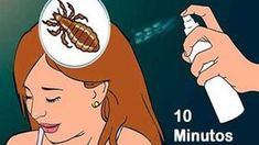 To Eliminate Those Bugs From Your Daughter's Head You Only Require 10 Mi. Natural Life, My Baby Girl, Face And Body, Home Remedies, Healthy Life, Curly Hair Styles, Beauty Hacks, Medicine, Health Fitness