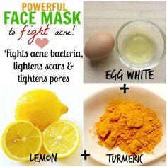Egg White and Lemon Juice Face Mask for Acne - 11 Anti-Inflammatory DIY Acne Remedies to Get Clean Skin in A Month