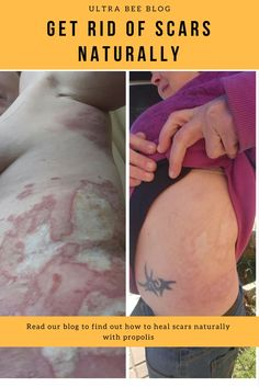 How to get rid of scars naturally Wellness Tips, Health And Wellness, Propolis Benefits, How To Get Rid, How To Find Out, Getting Rid Of Scars, Stretch Marks, Pimples, Healing