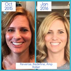 Love seeing these Before and After pics, but I'd love to show you your own results!   https://lrobertson45.myrandf.com