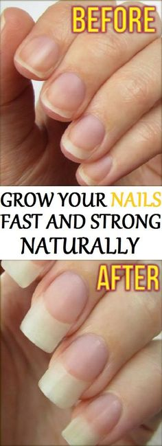 This Woman Just Use These Ingredients And Grows Nails Within 48 Hours