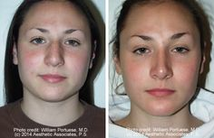 Wide Nasal Bones Before and After Photo Gallery - Nose Surgery Photos - Patient 7