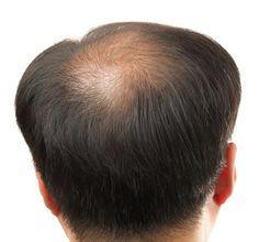 Was Tun Bei Haarausfall - Kreisrunder Haarausfall Behandlung http://haarausfall-heilung.info-pro.co/ Haarausfall:Diagnosemethoden Der hormonell-erblich bedingte Haarausfall lässt sich schon oft am Muster der Ausdünnung beziehungsweise Glatzenbildung eindeutig diagnostizieren. Der kreisrunde Haarausfall ist oft aufgrund der charakteristischen Anzeichen (zum Beispiel Ausrufungszeichenhaare) erkennen zu. Beim diffusen Haarausfall sieht der sich die Arzt Kopfhaut genauer una.  Eine