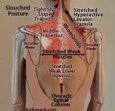 upper back muscles