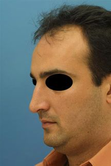 Welcome to Rhinoplasty Master your guide to Dr Philip J Millers practice in Rhinoplasty procedures Whether youre looking for the best Rhinoplasty surgery option in New Y. Ethnic Rhinoplasty, Rhinoplasty Surgery, Nose Surgery, Rhinoplasty Before And After, Mens Sunglasses, York, Website, City, General Surgery