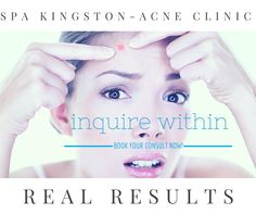 NO PICKING! Then apply your amazing Spa Kingston products and know that when you are on the right regimen you will clear fast, your breakouts are shorter, and your skin is healthier. After getting rid of your acne, you can stay clear because this system works and is again long term, not a quick fix! #spakingston #skincare #acnetips #aesthetician #skincaretips