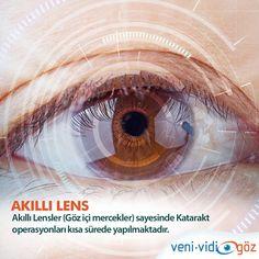Katarakt Tedavisinde Akıllı Lens(göz içi mercek) tedavisi ile operasyonlar  kısa sürede başarı ile gerçekleştirilmektedir.
