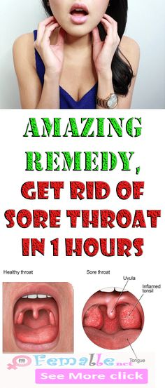 AMAZING REMEDY, GET RID OF SORE THROAT IN 1 HOURS