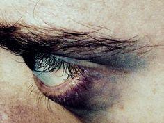 Stargazers second mutation darkness around the eyes Xavier Samuel, Karin Uzumaki, Easy Like Sunday Morning, Anakin Skywalker, Fight Club, Bucky Barnes, Dragon Age, Persona, Marvel