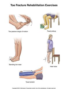 Summit Medical Group - Toe Fracture Exercises