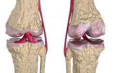 Consejos Para Mantener Tus Huesos Fuertes Y Sanos