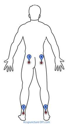 Hemorroides (ano, el recto bajo inflamación)