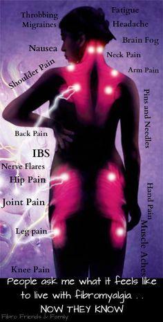 Fibromyalgia...where the pain is