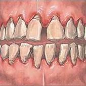 5 Home Remedies For Gingivitis - Natural Treatments & Cure For Gingivitis Foot Remedies, Herbal Remedies, Health Remedies, Natural Medicine, Herbal Medicine, Home Health, Health Tips, Health Care, Health Foods
