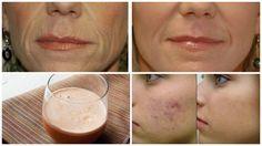 Cel mai ieftin aliment face minuni pentru piele. Elimină ridurile, vindecă acneea și previne îmbătrânirea prematură Glass Of Milk, Natural Remedies, Medicine, Peach, Fruit, Mai, Drinks, Food, Apothecary