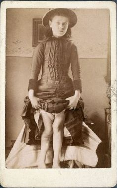 ca. 1870-1910, [portrait of a young girl with rickets]