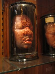 Mutter Museum.  I've been there often and still like going back again!!