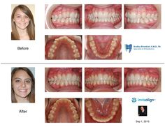 """Invisalign Adult with an Anterior Open Bite and Crowded Teeth"" Invisalign treatment is the better choice to correct anterior open bite malocclusions as compared to traditional braces. I finished her case in 14 visits."