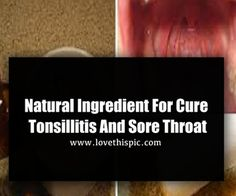 Natural Ingredient For Cure Tonsillitis And Sore Throat