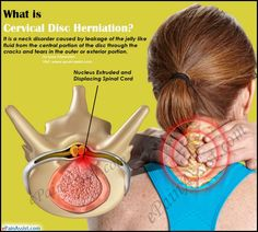 What is Cervical Disc Herniation? #NotJustAPainInTheNeck!