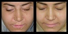"""""""New Look Skin and Hair Clinic Bangalore"""" provides you the best    treatment for vitiligo at affordable rate."""