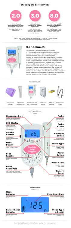 Sonotrax vascular doppler fdating
