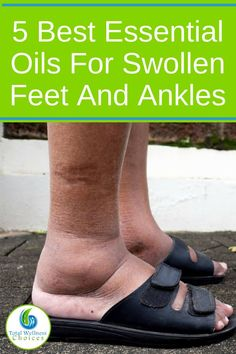 you suffer from swollen feet and ankles, you need to look at these home remedies made with essential oils. Foot soaks and massages are natural ways to help reduce swelling in your feet and legs when combined with Eos and other natural ingredients. Essential Oil For Swelling, Essential Oils For Inflammation, Essential Oils For Pain, Doterra Essential Oils, Essential Ouls, Foot Remedies, Natural Remedies, Natural Treatments, Health Remedies