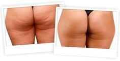Many people are trying to lose weight in order to lose cellulite. While it is possible to reduce cellulite while you are trying to lose fat the extent of i Coconut Oil Cellulite, Cellulite Scrub, Cellulite Remedies, Cellulite Workout, Diy Beauty Face Mask, Diy Face Mask, Thighs, Legs, Workout Exercises